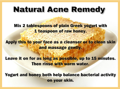 effective natural acne treatments